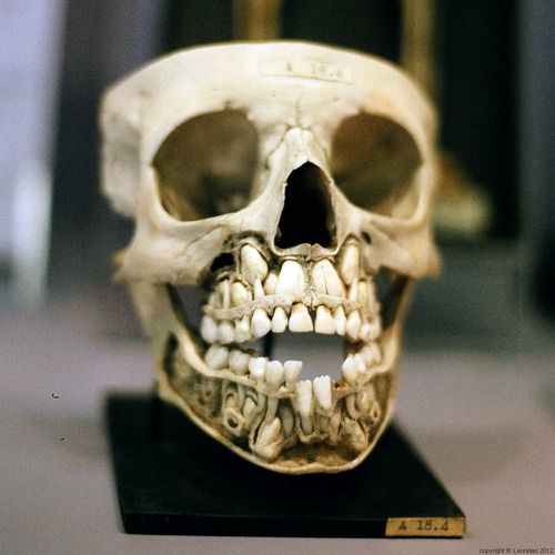 Child's skull with undescended teeth. Picture taken in the ...