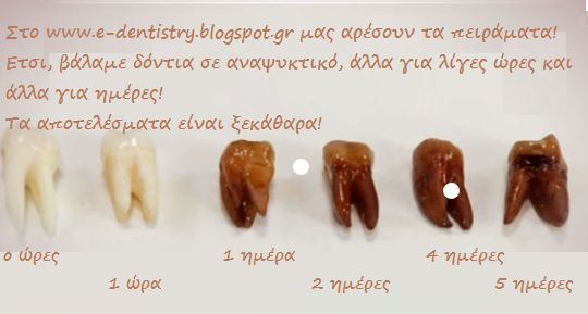 Είστε λάτρης των αναψυκτικών; Σκεφτείτε το λίγο.... E-Dentistry