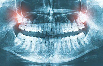 www.lsdentalcostarica.com #travel #placestogo #dentalimplantscostarica #costaricadentalimplants #costaricadental #dentalimplantsincostarica #costaricadentalprices  #costaricadentalcost #costaricadentaltourism #dentistcostarica #dentistincostarica #dentaltourismcostarica #costaricadentalimplantscost #dentalworkincostarica #bestdentistincostarica #dentalveneerscostarica #allonfourcostarica #allonfive #allonfour #dentistguanacaste #costarica #beach #wildlife #nature #sunset