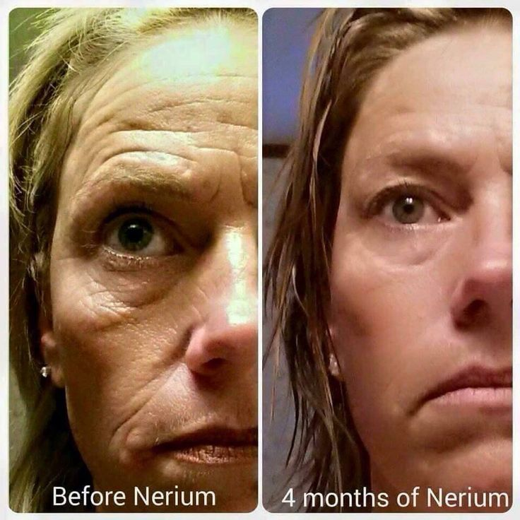 Nerium continues to amaze. This is 4 months worth of results - WOW!  Try it now  with a 30 day money back Guarentee.  www.debmark.nerium.com