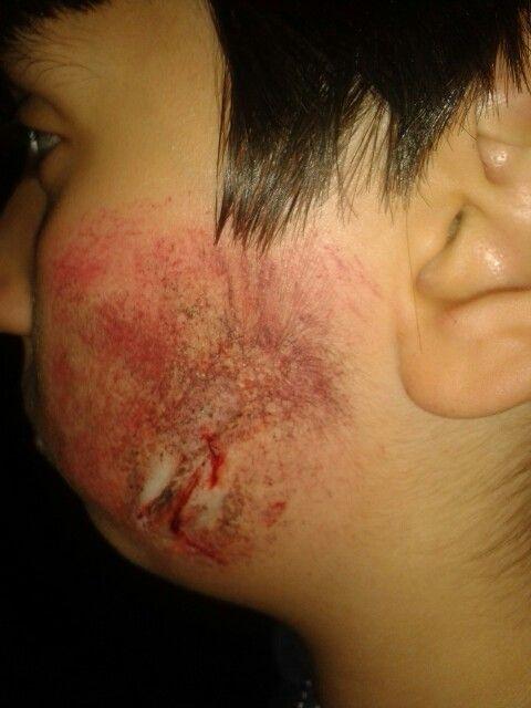 Taglio sulla guancia X festa di Halloween