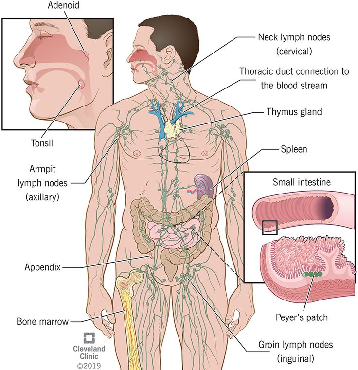 Lymphatic System Parts Common Problems In 2020 Lymphatic System Lymphatic Lymphatic Filariasis