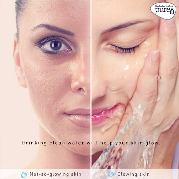 Water Your Skin Water Improves Complexion And Helps Keep Your Skin Hydrated Make Sure You Keep Your Skin Healthy And Glowing By Skin Clean Water Healthy Skin