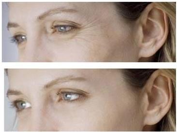 Anti-aging Mesotherapy NCTF135HA Filorga Medical