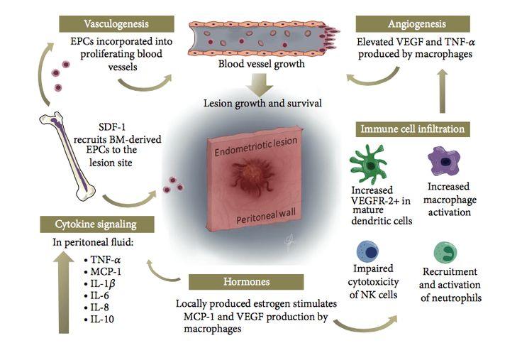 Natural Treatment of Endometriosis