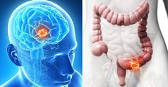 Lass die Krebszellen verhungern, indem du diese Zutat aus deiner Ernährung entfernst!