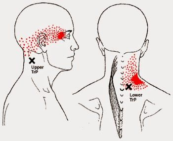 Dra Liege Mentz-Rosano: Cervicalgia ou Dor no Pescoço
