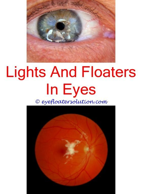normal amount of eye floaters - eye issues floaters curcumin