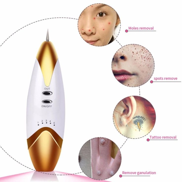 Beauty Skin Care Laser Freckle Removal Instruments Skin Mole Removal Tool Dark Spot Cleaner Wart Tag Tattoo Remaval Pen Salon  #Affiliate