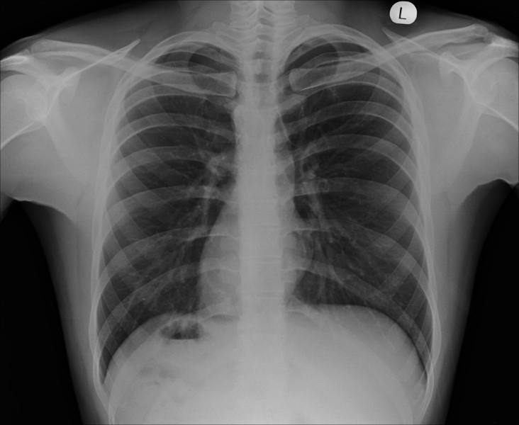 25+ best ideas about situs inversus on pinterest | radiology, Skeleton