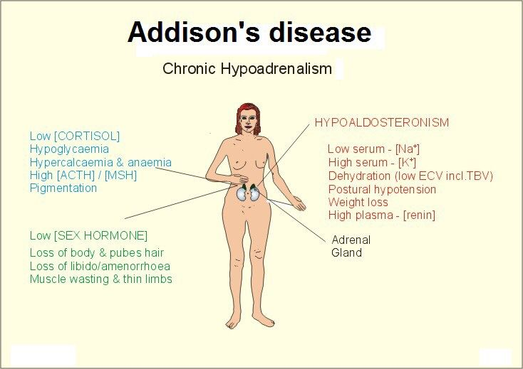 """case study addisons disease Enervating case of jaundice two years later, and in the mid-1930s   approximately one year later, he had to end his studies at the  addison's  disease and told one of kennedy's friends that """"he hasn't got a year to live."""