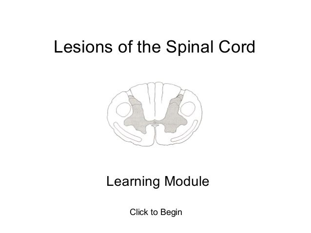 Lesions of the Spinal Cord: Learning Module