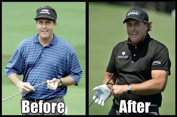 What Do You Think - Has Phil Mickelson Had Gynecomastia -6311