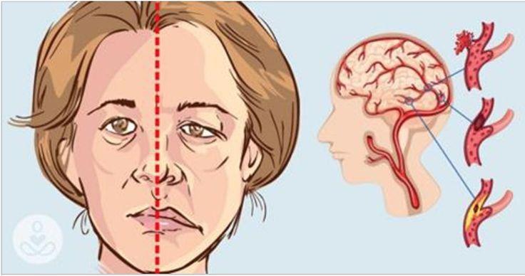 Como saber se uma pessoa está tendo um derrame - e o que fazer para prevenir a doença! | Cura pela Natureza