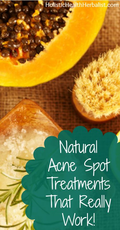 Making your own natural acne spot treatments is fun and easy. they're natural, chemical free, and effective.