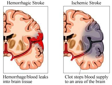 Stroke Types  #stroke - Pinned by Mountain Land Rehabilitation.  Learn more about MLR at mlrehab.com!