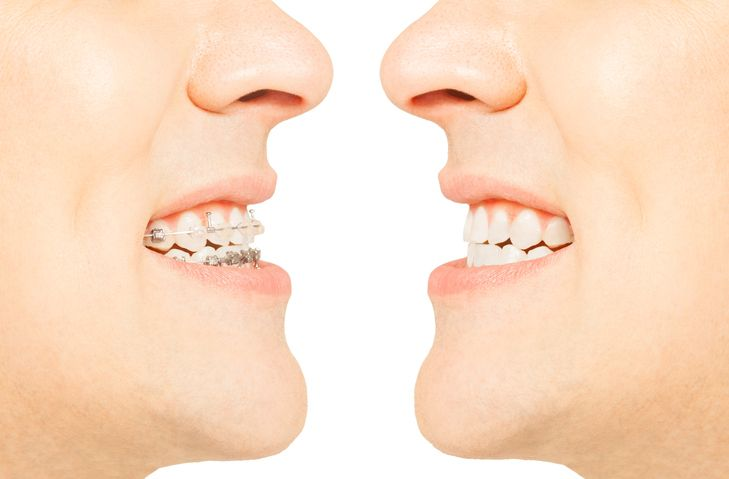 Braces vs Liners: A Look at What Students in Dental Assistant Training Need to Know