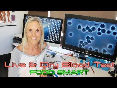 Live & Dry Blood Test - What to expect