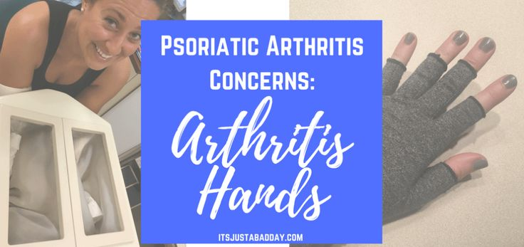 "Psoriatic Arthritis Concerns: ""Arthritis Hands"" 