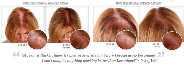 353 best Keranique Hair Regrowth Treatment images on Pinterest ...