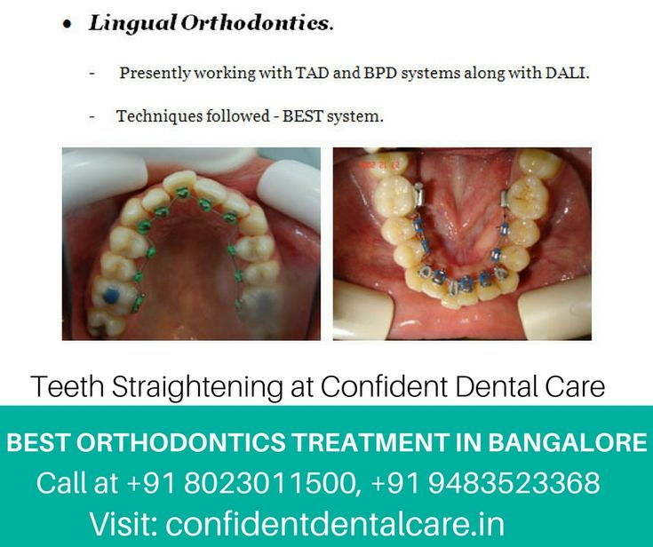 Are you worried about the alignment of your Teeth?  For booking your appointment Call at +91 8023011500, +91 9483523368 Visit: http://goo.gl/TROvdS  #Smilemakeoverclinic #Orthodontistclinic #Orthodonticsclinic #Dentalclinicbangalore