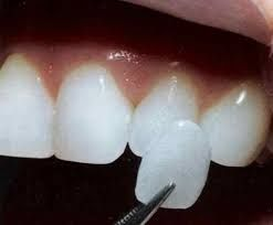 Dental contact lensesare kind of porcelain laminates that cover your teeth. They are also known by this name because of their lean formation (0.3mm). Contact Clinica Beautiful Smile to get these lenses done.