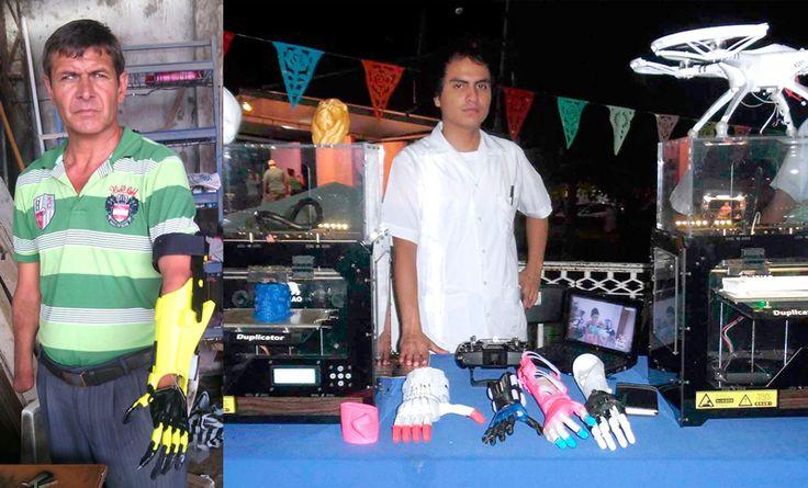 Prótesis de bajo costo con impresoras 3D
