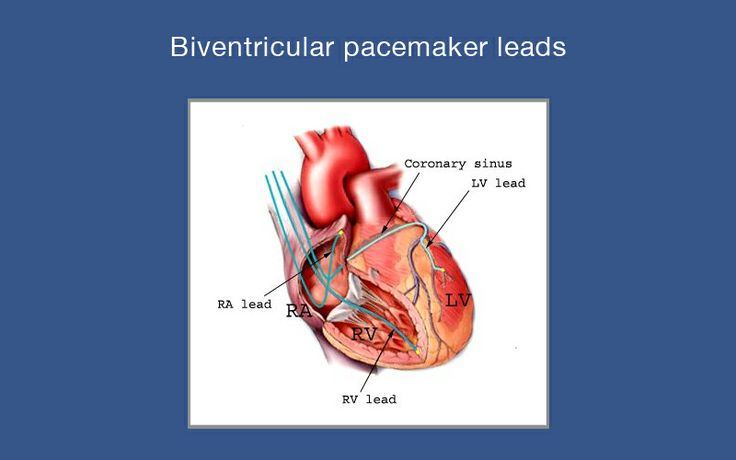 Biventricular Pacemaker - Bing images