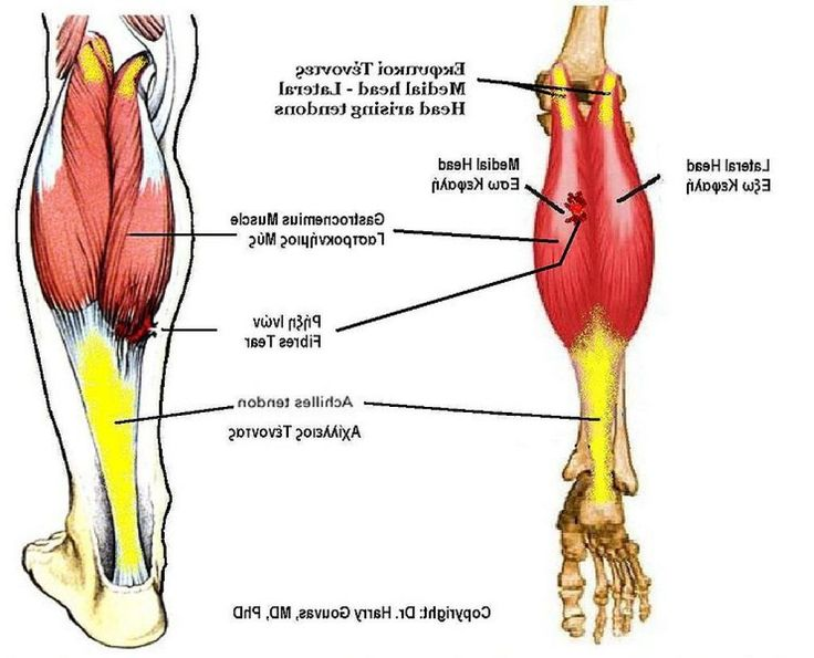 how to help a strained calf muscle