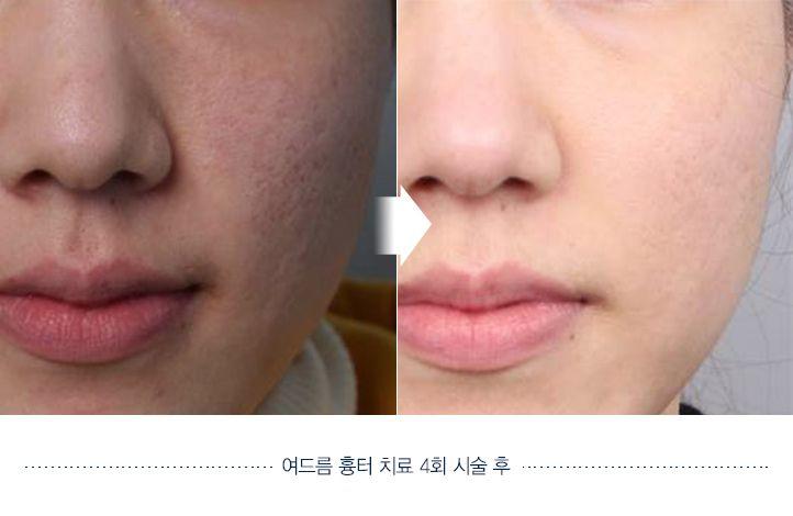 Acne Scaring Before and after. Website: en.daprs.com #DApasticsurgery #plasticsurgery #koreaplasticsurgery #cosmeticsurgery #koreanbeauty #dermotolgy #skincare #skintreatment #clearskin #beautiful #koreanplasticsurgery #confident #beforeafter #beforeandafter