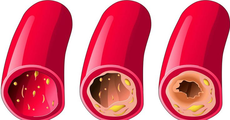 10 foods that unclogs arteries in a totally natural way. We present you the 10 most effective ingredients that can help unplug arteries and prevent. unclogs