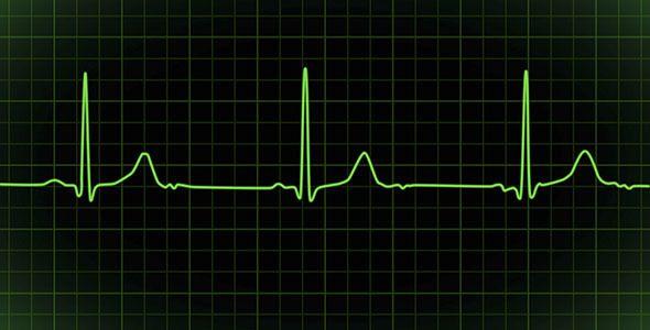 Applied Math - Heartbeat Monitor EKG Cardiogram Loopable ...