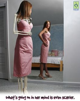 "anorexia destroys the suffers body and personality Eating disorders are serious, potentially life-threatening conditions that affect a person's emotional and physical health they are not just a ""fad"" or a ""phase."
