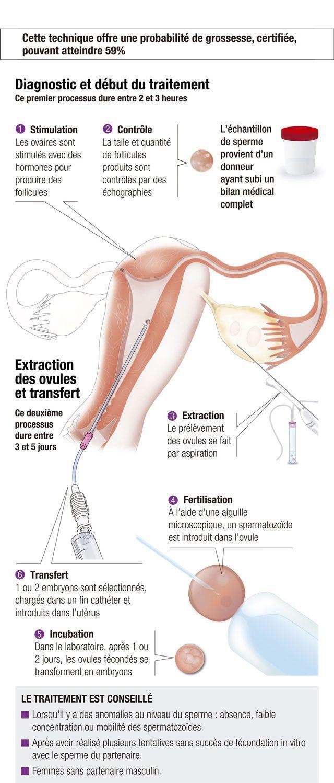FIV avec vos propres ovules et don de sperme