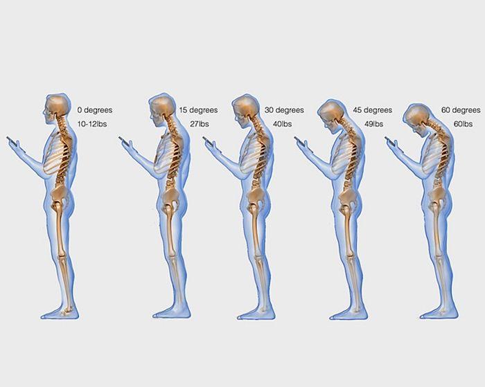 ถือโทรศัพท์อย่างไรไม่ทำร้ายกระดูกสันหลัง | Lively