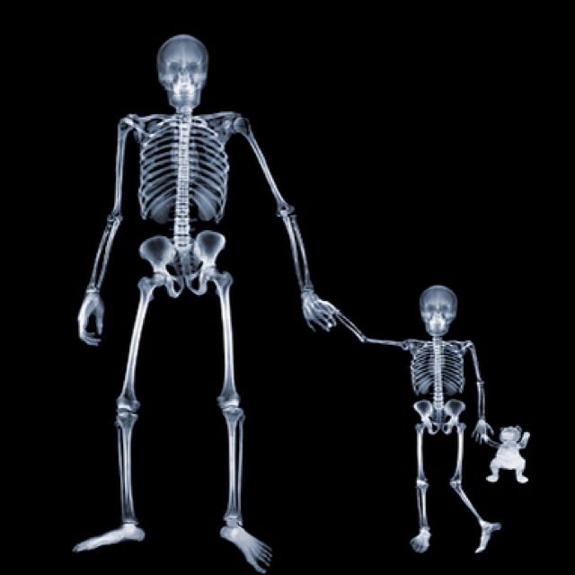 Father and Son~♛ X-RAY PHOTOGRAPHY More At FOSTERGINGER @ Pinterest