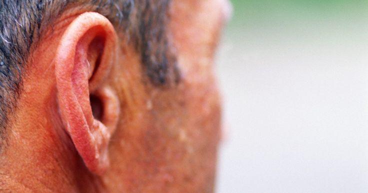 Tratamentos não cirúrgicos para sudorese facial excessiva. A hiperidrose facial, comumente referida como sudorese facial excessiva, é uma condição rara caracterizada por sudorese excessiva do rosto. Esta condição é geralmente embaraçosa e desconfortável para o paciente, em virtude de implicações sociais e a dificuldade de tentar esconder o problema. Embora a maioria dos tratamentos para a hiperidrose ...