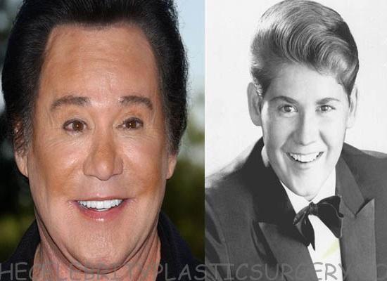 Wayne Newton Plastic Surgery Before And After Wayne