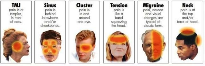 headache location chart headache