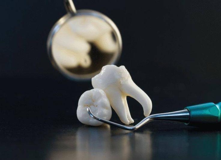 Во время полоскания больных зубов чувствуется небольшая болезненность, которая со временем проходит. У меня болезненность одного зуба под пломбой прошла только к концу срока полоскания (через месяц).