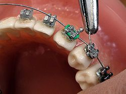 L'orthodontie et la dentisterie neuromusculaire : pour que tout soit à sa place - http://genevieverompre.com/lorthodontie-et-la-dentisterie-neuromusculaire-pour-que-tout-soit-a-sa-place/