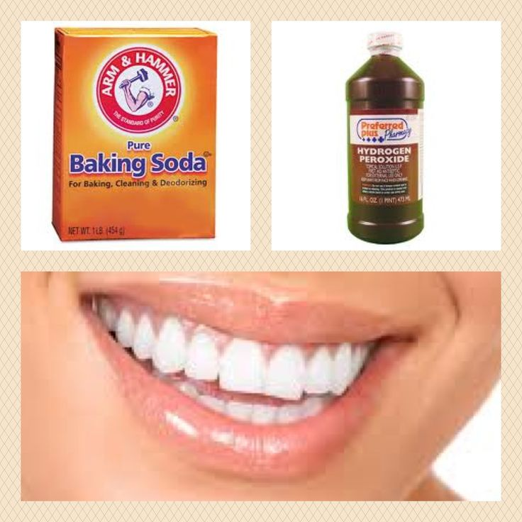 39 Best Images About Stained Teeth On Pinterest Stains
