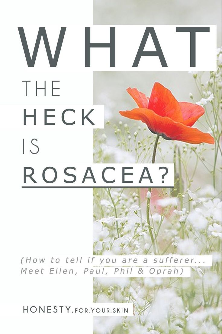 What IS Rosacea? If you blush A LOT, does that mean you have rosacea? If you turn a shade of lobster at least twice a day and that lobster hangs around - is that rosacea? What about acne, you might of heard of 'acne-rosacea', if you suffer from acne could that mean you also have rosacea? & what about sensitive skin, sensitive skin loves that lobster red too, does that mean you have rosacea? Just what the heck is rosacea 'eh! These are the rosacea fact v fictions... http://wp.me/p6LuQS-Jc