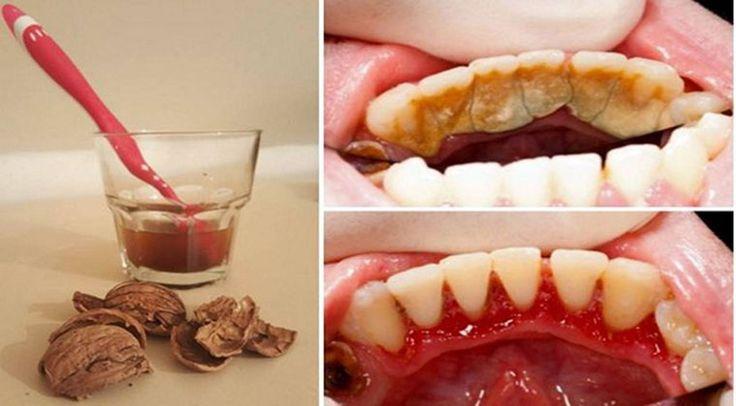 Elimina a Placa Bacteriana dos Dentes em Poucos Minutos usando apenas dois Ingredientes Naturais! | Lição de Vida