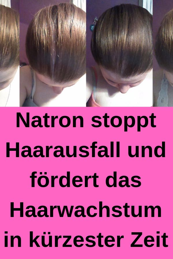 Natron stoppt Haarausfall und fördert das Haarwac…