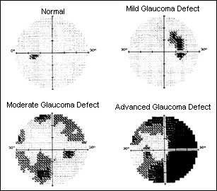 Pin on Ophthalmology, Optometry