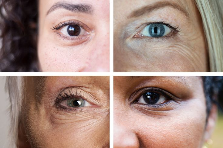 The Fix for Dark Circles Bags and Droopy Lids in 2020