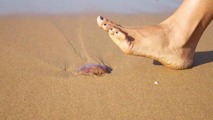 Comment bien traiter une piqûre de médusenoté 3.7 - 3 votes C'est l'été et vous voilà en train de barboter tranquillement dans l'eau dans votre bouée colorée. Bien qu'il fasse grand beau et que tous les ingrédients semblent réunis pour passer un bon moment, votre baignade tourne court quand une méduse a voulu s'approcher trop …