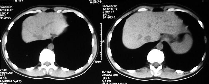 Tomografía computada del abdomen, sin contraste endovenoso