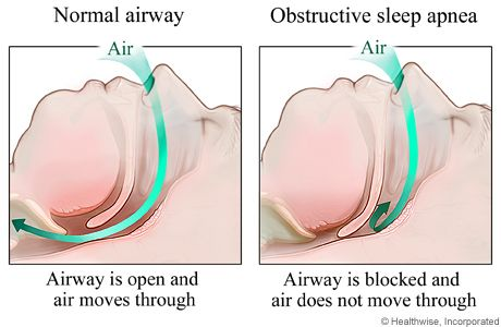 Do you know someone with snoring or sleeping problems? They might suffer from #SleepApnea. Check out our blog post for more info. #ThousandOaksDentist